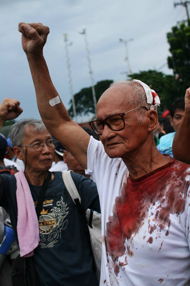 SELDA's Rudy del Rosario after the violence between police and rallyists at the 2013 SONA, photo by Mon Ramirez.